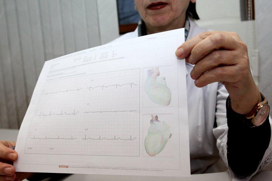 За последние 4 года у москвичей снизилось количество инсультов